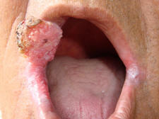 Carcinoma of the Upper Lip